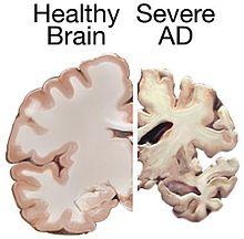 220px-alzheimers_brain